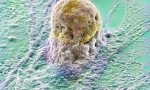 Human embryonic stem cell Credit: Annie Cavanagh. Wellcome Images images@wellcome.ac.uk http://images.wellcome.ac.uk